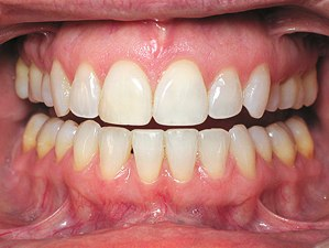 dental_photography_anterior_ret
