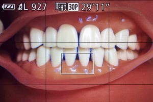 dental_phototography_anterior_mf